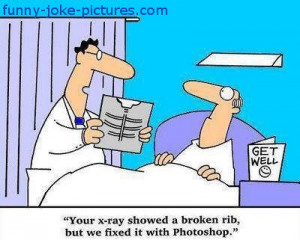 Funny X-Ray Rib Photoshop Fix Cartoon - Your x-ray showed a broken rib ...