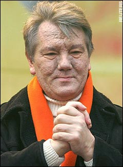 Viktor Yushchenko Poisoned? , Before and after photos