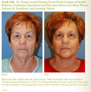 Neck Lift Plastic Surgery Dr. Young Seattle