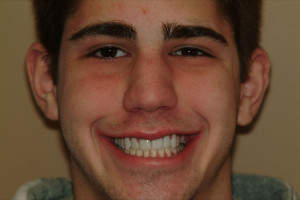 Hockey Player Missing Teeth