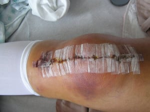 Related Pictures funny quotes abouts knee surgery