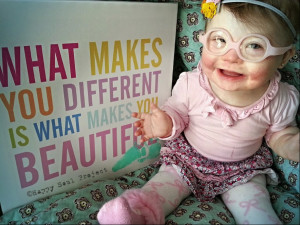 This picture is important. Many children diagnosed with Down Syndrome ...