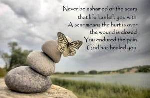 ... over the wound is closed you endured the pain god has healed you every