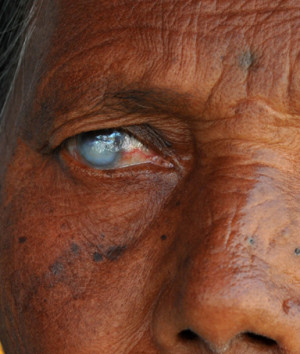shows the eyes of a woman blind in the right eye during a free eye ...