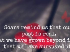 scars quotes photo: Scars remind us the past is real we survived it ...