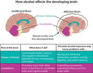 how_alcohol_affects_the_developing_brain.jpg
