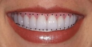 Smiles Teeth Cosmetic-smile-design-5. tooth
