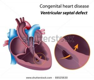 Congenital Heart Disease...