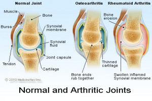 Picture of normal and arthritic joints - osteoarthritis