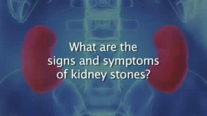 Kidney Stones Symptoms and Treatment | PopScreen