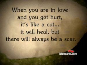 Home » Quotes » When You Are In Love And You Get Hurt, It's Like A ...