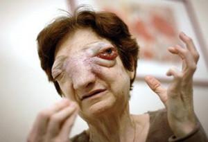 ... to President Nicolas Sarkozy to allow her to die by euthanasia