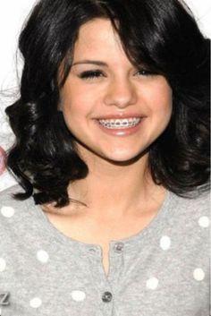 Selena Gomez with braces More