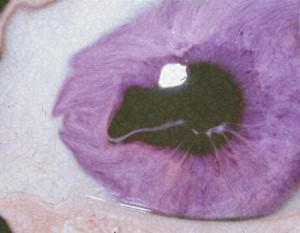 sad Grunge eye acid purple freak pastel analog pastel goth pastel ...