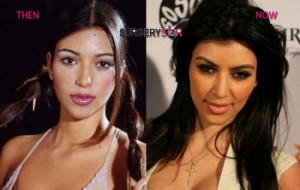 before plastic surgery - funny pictures - funny photos - funny ...