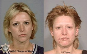Meth Before And After Drugs