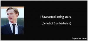 have actual acting scars. - Benedict Cumberbatch