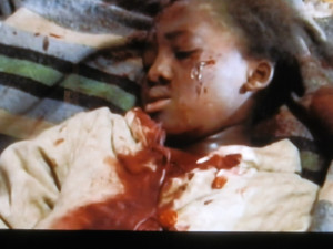 child that got hurt by the LRA...