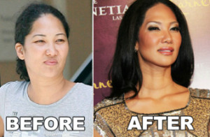 Kimora Lee Simmons Nose Job before and after photo