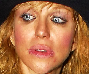 10 Worst Celebrity Lip Injections: Before And After Botched
