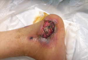 Pressure Ulcer Foot