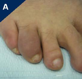 Psoriatic Arthritis Toe