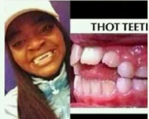 Thot teeth Wђคイ Tђє, Tongue Thrust, Tђє Funny L๓ค, Speech ...
