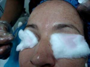 como clarear manchas no rosto, minha dica- como usar acido glicolico ...