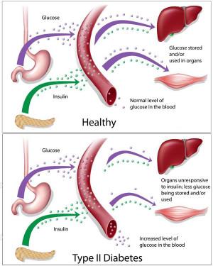 type 2 diabetes type 2 diabetes is also often called