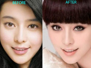 Plastic Surgery Before And