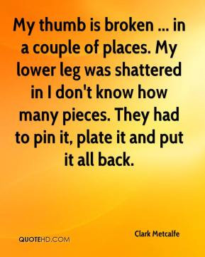 Metcalfe - My thumb is broken ... in a couple of places. My lower leg ...