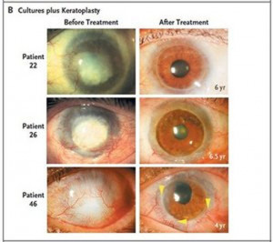 Researchers reverse blindness with stem cell transplants