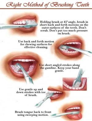 Right Method of Brushing Teeth