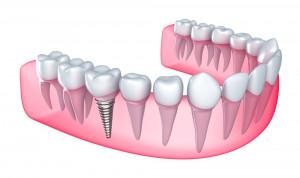 Dental Laboratory Price List