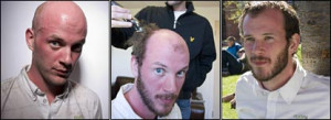 Robert bald; having hair plugs implanted; and with a full head of fake ...