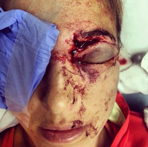 Pro volleyball player Morgan Miller didn't sustain this nasty injury ...