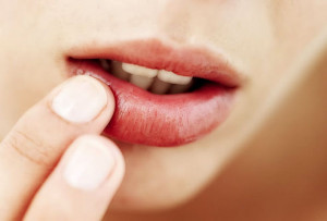 How to treat Cold Sores or Lip Blisters