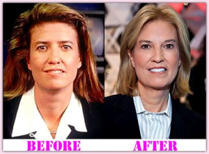 facial plastic surgery before and after