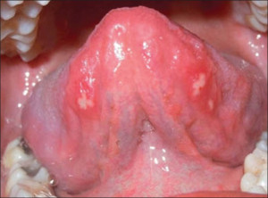 Aphthous Ulcer Under Tongue