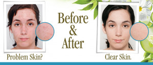 Individual results will vary depending on number of treatments, skin ...