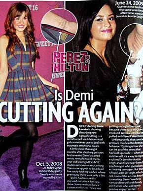 Demi Lovato causa polêmica ao aparecer novamente com feridas no pulso