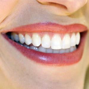 of knowing white teeth secrets and having perfectly straight teeth ...