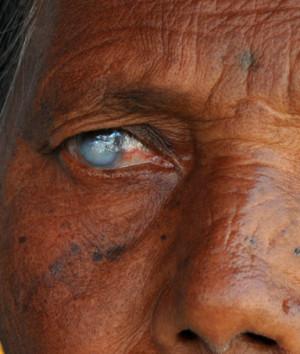 Eye Diseases List