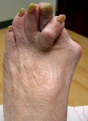 Would you break up with someone because they had ugly feet?