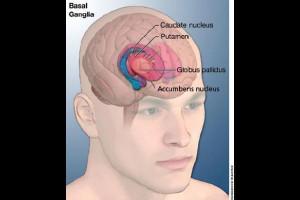 Tourette syndrome Picture Slideshow