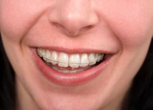 braces1.s600x600