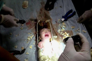 Chinese baby rescued from toilet pipe after being flushed away by his ...