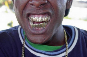 Gangster Jewelry for Teeth