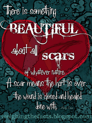 there is something beautiful about all scars of whatever nature a scar ...