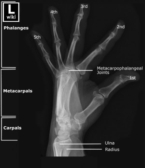 lateral wrist x ray anatomy